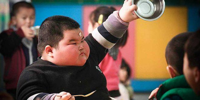 چاقی کودک